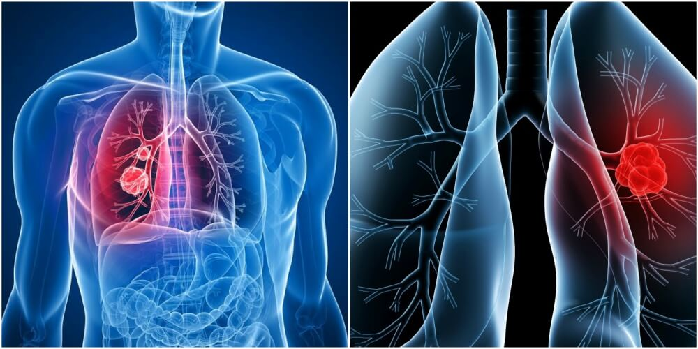 What is Mesothelioma cancer and How is it Caused?