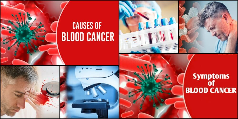 What is Blood Cancer? Symptoms, Causes & Treatment