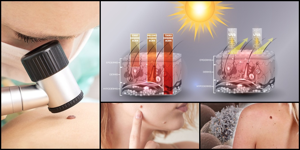 What Is Melanoma Skin Cancer? Early Detection and Treatment of Skin Cancer